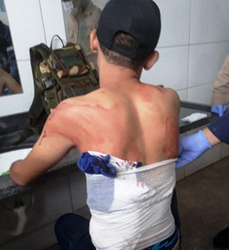 Rapaz foi liberado com grave ferimento feito a faca