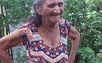 CE: genro ateia fogo em sogra de 82 anos para chamar atenção de esposa
