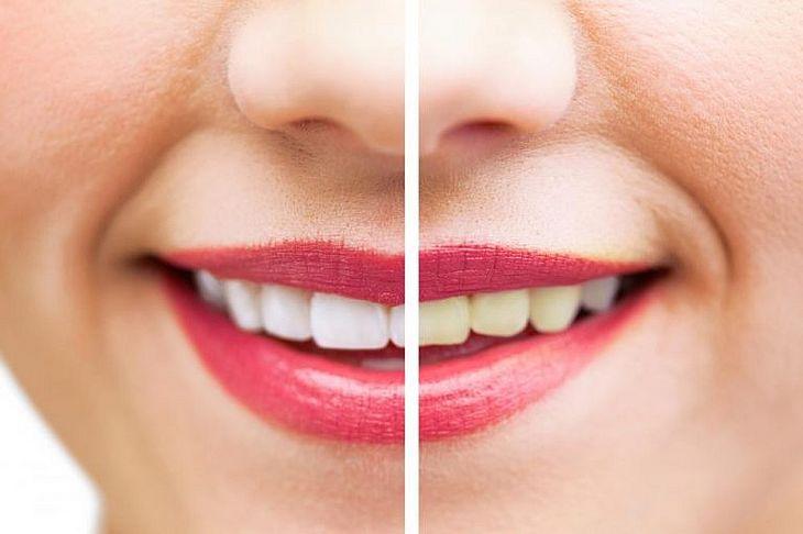 Os 10 Remedios Caseiros Para Branquear Os Dentes De Grande Eficacia