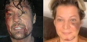 """Ator aparece ferido e debocha de Joice Hasselmann: """"Sofri um atentado"""""""