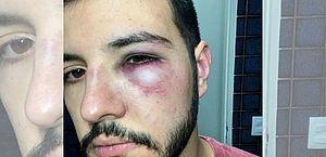 Apresentador Matheus Ribeiro, do DF Record, reage a assalto e é agredido