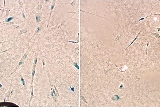 Resultados de experimentos feitos em células cerebrais humanas sugerem que o medicamento retarda o envelhecimento celular